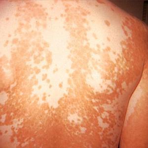 Ayurvedic treatment for Leucoderma